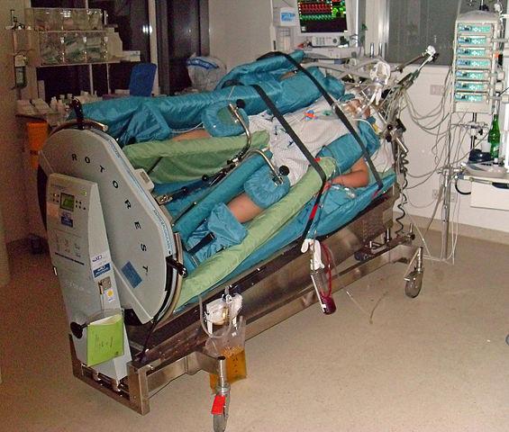Zwei Intensivpatienten, nur ein Bett.