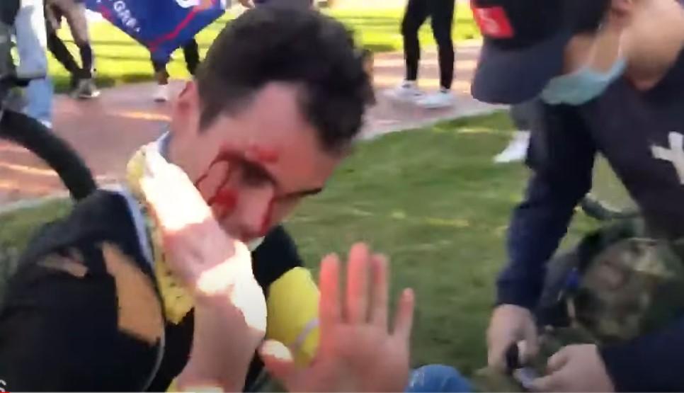 Washington: Menschenjagd durch BLM und Antifa [Video]