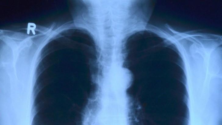 Pneumonie und Covid-19: Weniger als erwartet und sinkende Tendenz