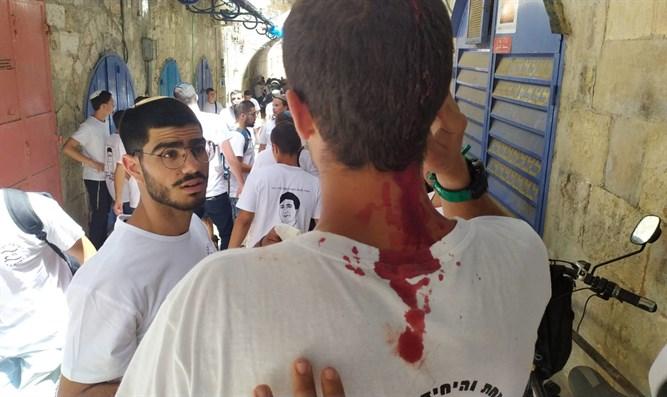 Freunde eines ermordeten Jeschiwa-Studenten wurden in der Altstadt von Jerusalem angegriffen