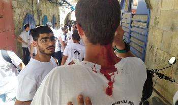 Freunde-eines-ermordeten-JeschiwaStudenten-wurden-in-der-Altstadt-von-Jerusalem-angegriffen