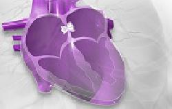 [StartUp der Woche]               V-Wave hilft Patienten mit Herzschwäche