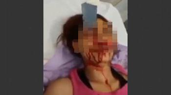 Messer im Kopf abgebrochen - Vier Frauen von Tunesier angegriffen